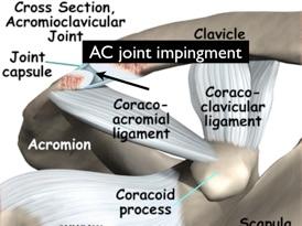 Neck, Shoulder & Arm Pain